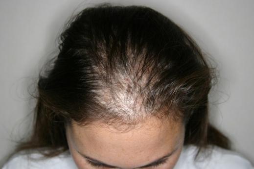 rụng tóc khi gội đầu