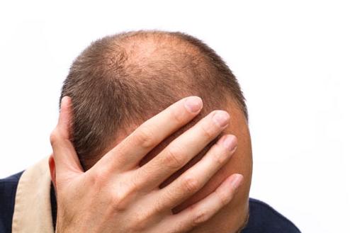 cách chữa rụng tóc ở đỉnh đầu