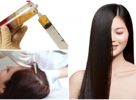 Tiêm steroid để trị rụng tóc từng mảng